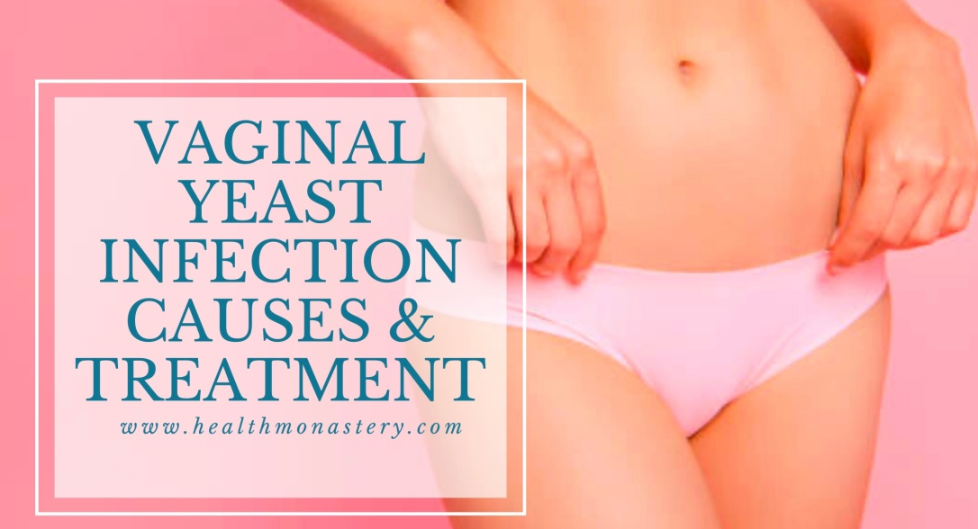 Vaginal yeast infection, vaginal itching, vaginal discharge